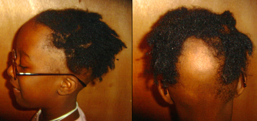 Alopecia Areata In African American Children